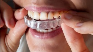 Manakah yang Lebih Efektif, Invisalign atau Kawat Gigi Tradisional?