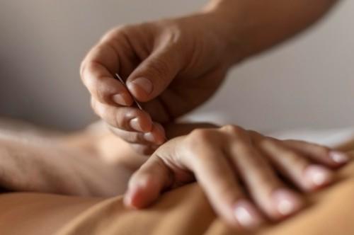 Akupunktur dan akupresur membantu rileksasi lansia untuk bisa tidur lebih berkualitas. (Foto: Ilustrasi/Freepik.com)