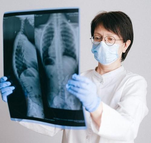Dr. RA Adaninggar PN, SpPD mengatakan tentang bagaimana pasien covid-19 yang sudah sembuh. (Foto: Ilustrasi/Pexels.com)