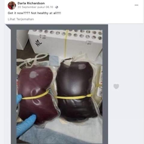 [Cek Fakta] Foto Darah Orang yang Sudah Disuntik Vaksin Covid-19 Berubah Warna? Begini Faktanya
