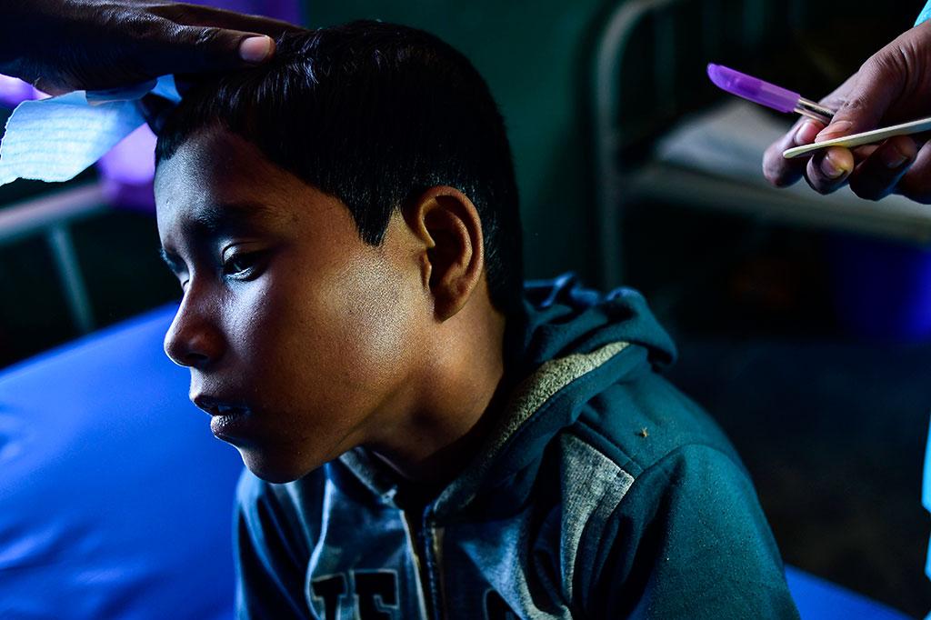 Difteri Ancam Pengungsi Rohingya