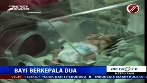 Bayi Berkepala Dua dari Gresik Dirujuk ke RSUD Dr Soetomo
