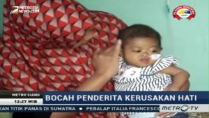 Bayi Ini Bertahan Hidup dengan Hati & Empedu Rusak