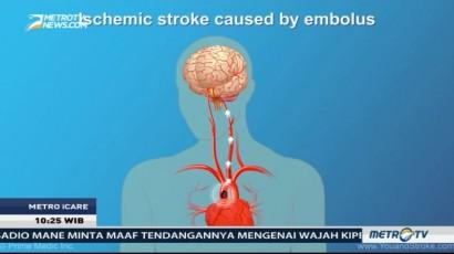 Ini Faktor-faktor Risiko Stroke