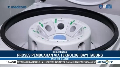 Teknologi Bayi Tabung