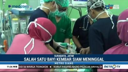 Salah Satu Bayi Kembar Siam di Surabaya Meninggal Dunia