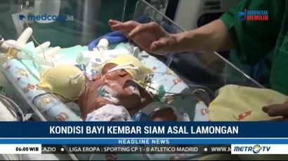 Bayi Kembar Siam di Surabaya Dirawat di RSUD dr Soetomo