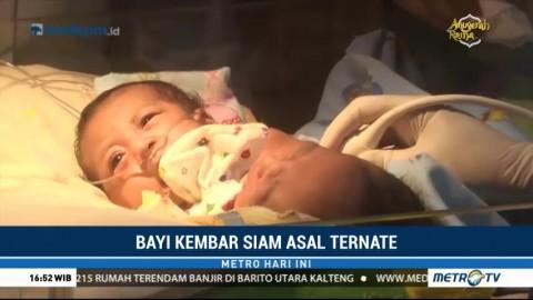 Bayi Kembar Siam asal Ternate Dirujuk ke RSUD dr Soetomo