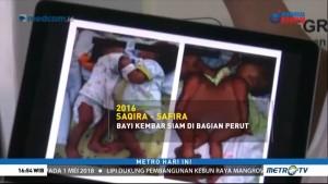 Daftar Operasi Pemisahan Bayi Kembar Siam di Indonesia