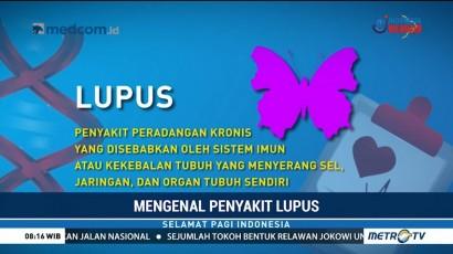 Berdamai dengan Penyakit Lupus (1)