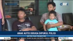 Anak Autis di Blitar Babak Belur Diduga Dipukuli Oknum Polisi