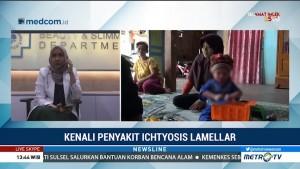 Kenali Penyakit Ichthyosis Lamellar