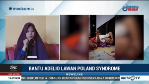 Bantu Adelio Lawan Poland dan Meubius Syndrome