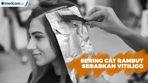 Sering Cat Rambut Sebabkan Vitiligo