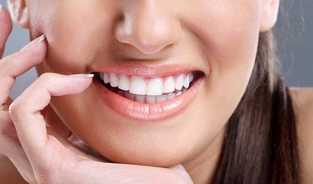 Cara Membuat Gigi Putih Bersinar