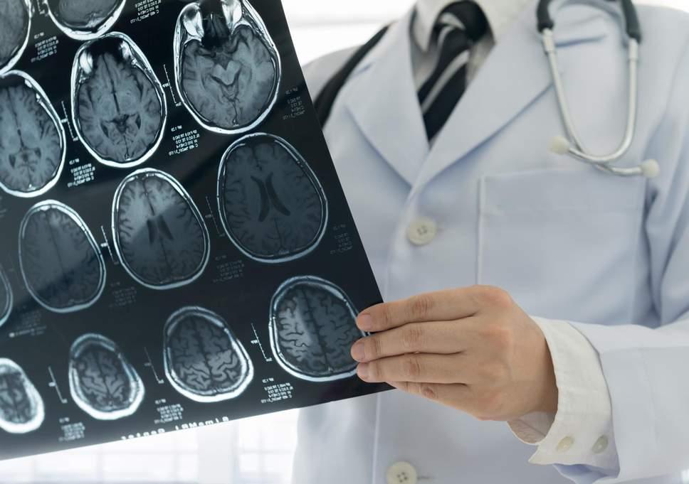 Merasa Lebih Muda, Pertanda Otak Sehat