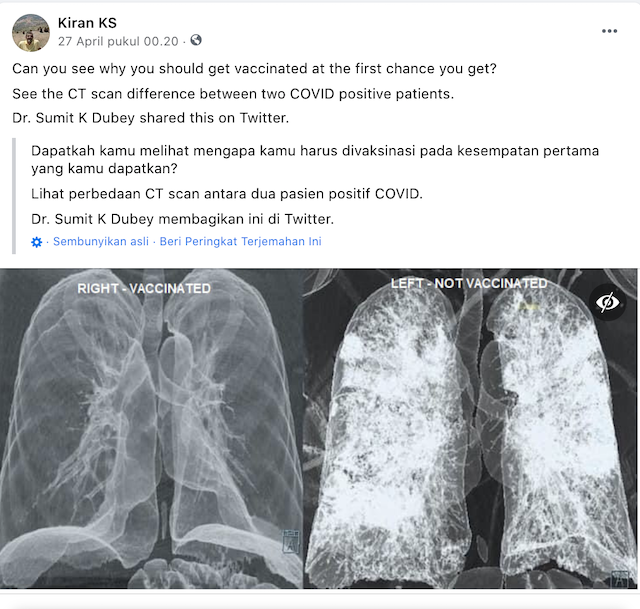 [Cek Fakta] Beredar Foto CT Scan Paru-Paru Pasien setelah Menerima Vaksin Covid-19? Ini Faktanya
