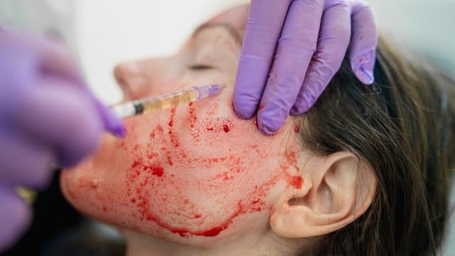 Bahaya di Balik Perawatan Facial Vampir