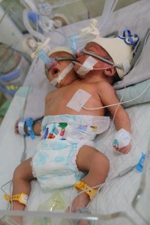 RSUP H. Adam Malik Rawat Dua Pasang Bayi Kembar Siam